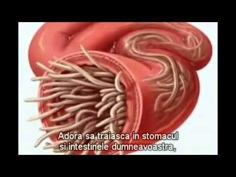 nematodele sunt paraziți la om gastric cancer young