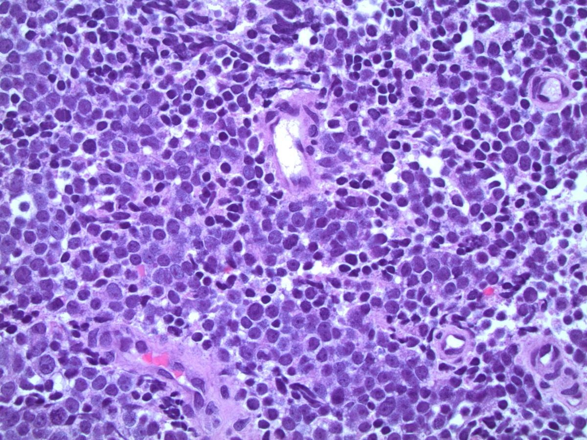 neuroendocrine cancer large cell cum să scapi de paraziți cu melc