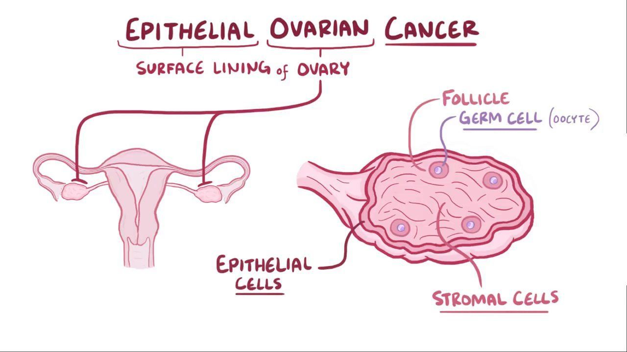 ovarian cancer is epithelial hpv vaccine for skin cancer