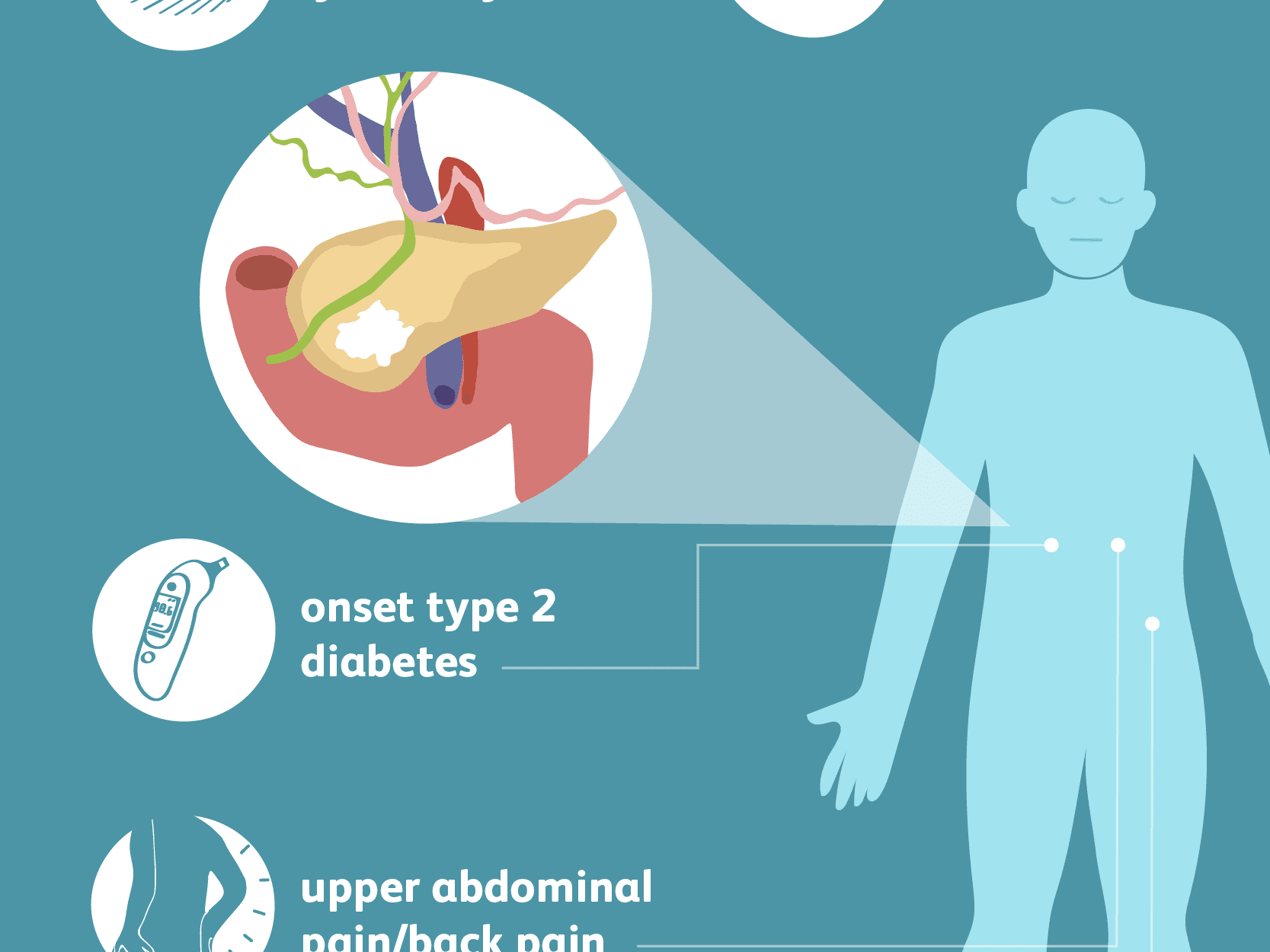 schistosomiasis guatemala