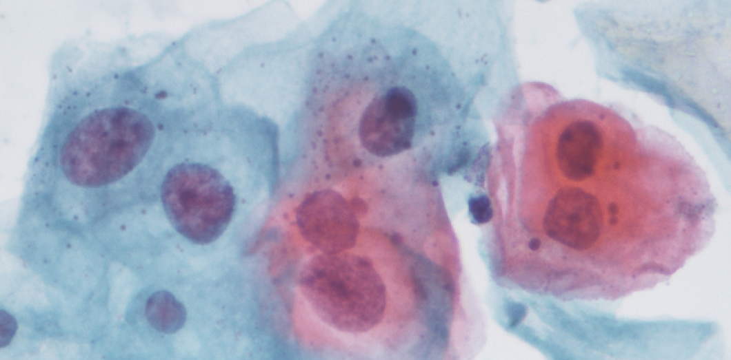 Papillomavirus transmission grossesse, Symptômes au 1er stade (syphilis primaire)