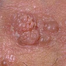 Papillomavirus symptomes chez lhomme, Intestinal cancer blood clots