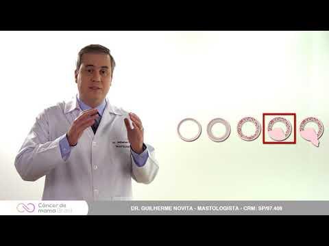 Papiloma ductal bucal - Simptomele infecției cu HPV în cavitatea bucală