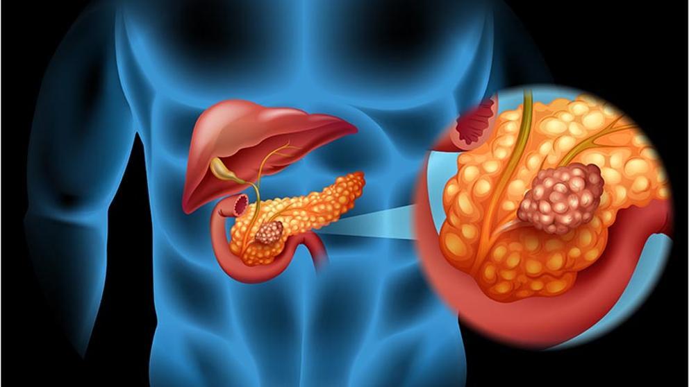 papiloma intraductal canceroso viermi comuni