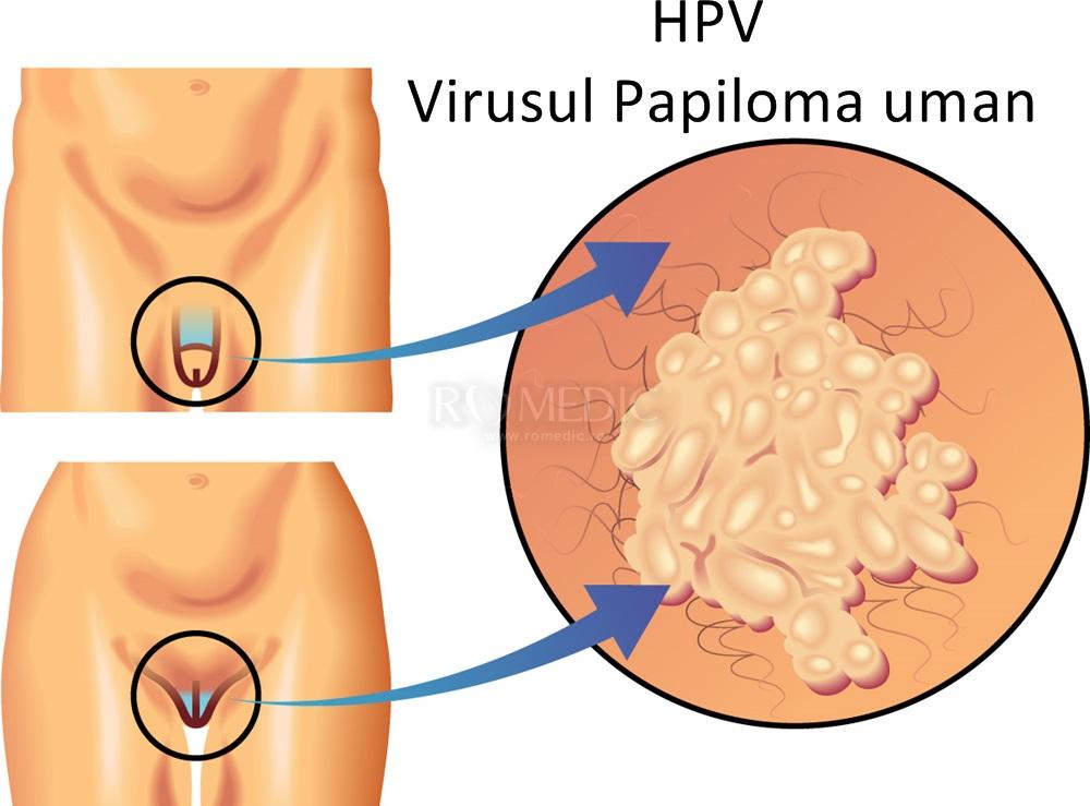 cancer non hormonal benign cancer of the bladder