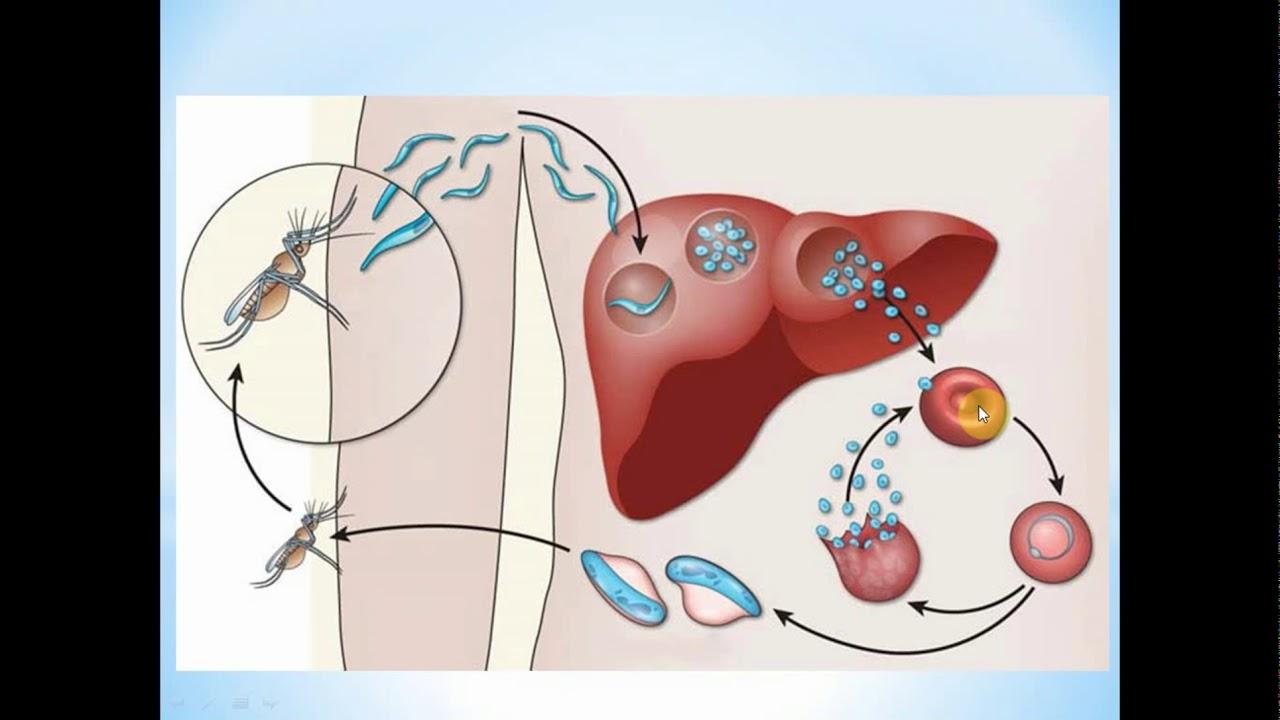 tratamentul special al viermilor complicaciones por oxiuros