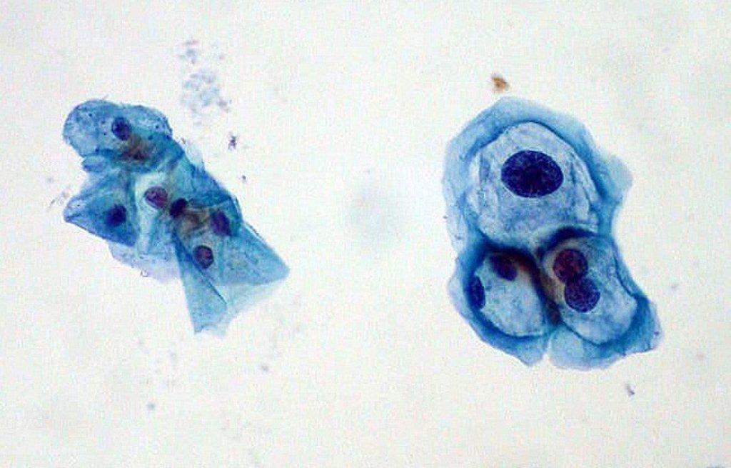 que es celulas papiloma