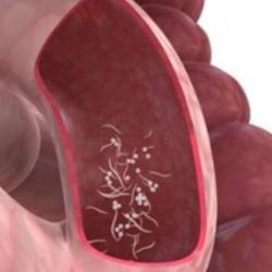 hpv tumor mund laryngeal papillomatosis bronchitis