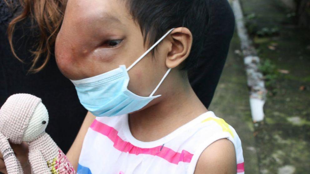 infection papillomavirus traitement
