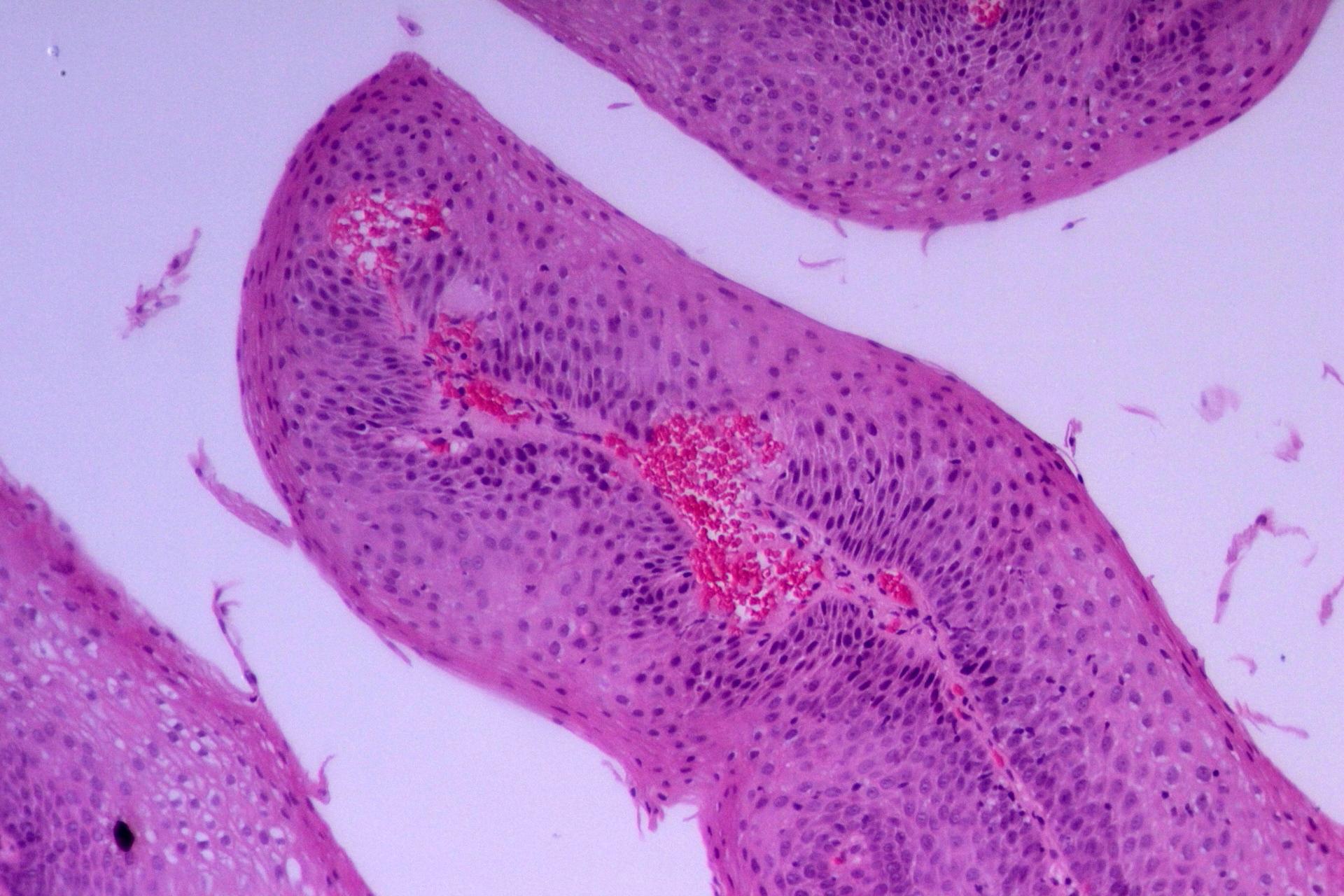 squamous papilloma esophagus histology