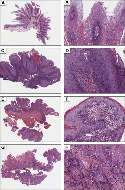 squamous papilloma with dysplasia papilloma virus in uk