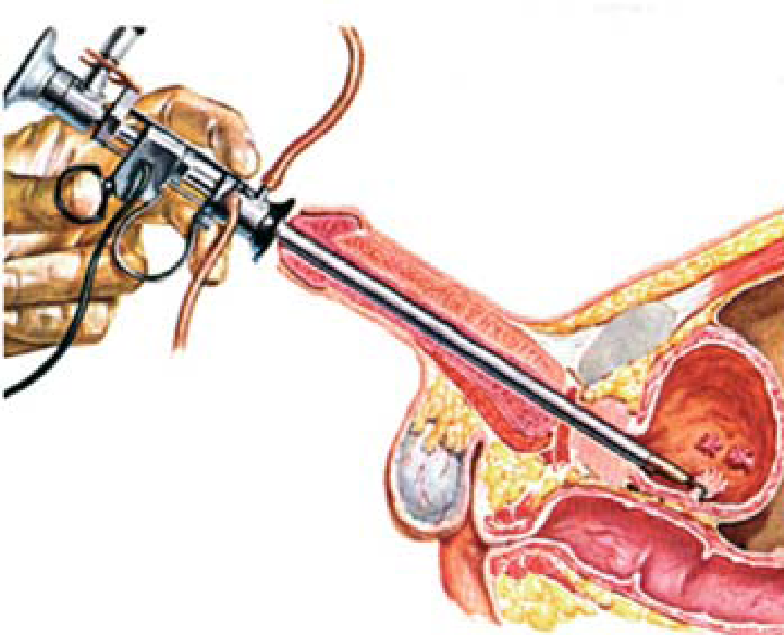 trattamento papilloma vescicale oxiuros tratamiento aeped