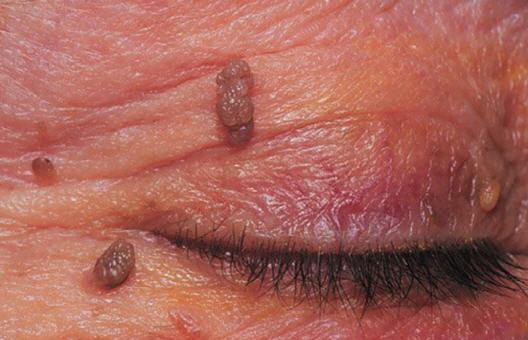 Medical treatment for papillomas