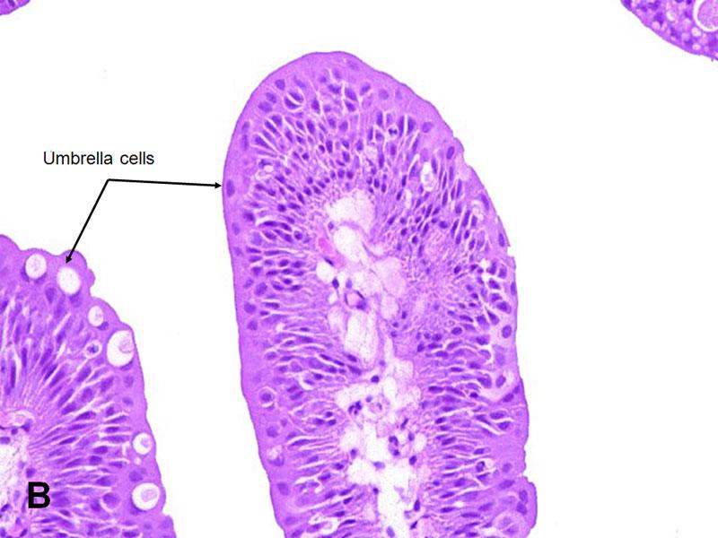 urothelial papilloma patho profilaxie de vierme rotunde