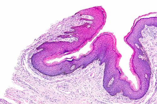 Conjunctival squamous papilloma treatment - transroute.ro