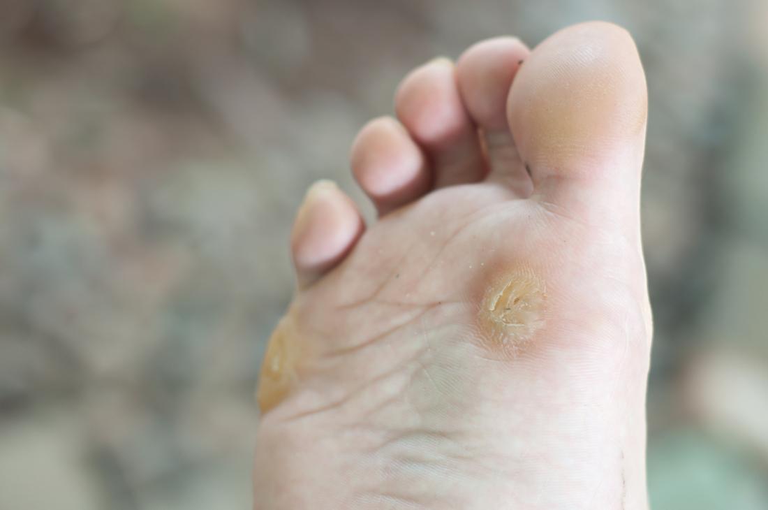 Wart on foot or blister. Parasitos oxiuros tratamiento casero