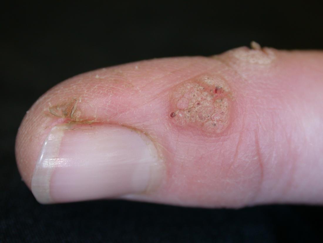 wart virus spread